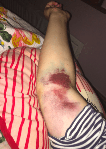 blood cancer symptoms shown as bruises on an arm