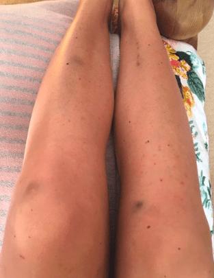 Leukaemia Rash on legs